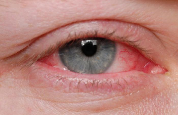 Qué es el ojo seco?