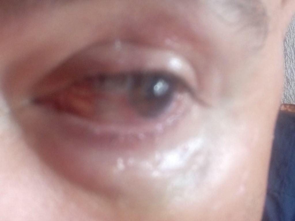 ojo hiper reactivo