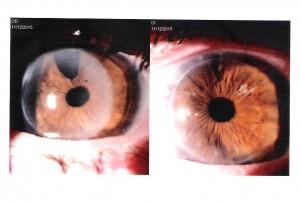 Foto ojos 11-12-15