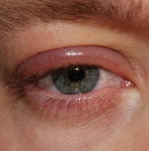 img_cuales_son_los_sintomas_de_la_blefaritis_25300_600